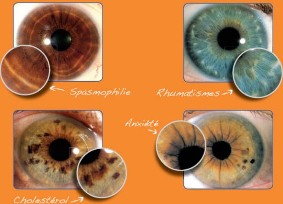 Iridologie iridologie img